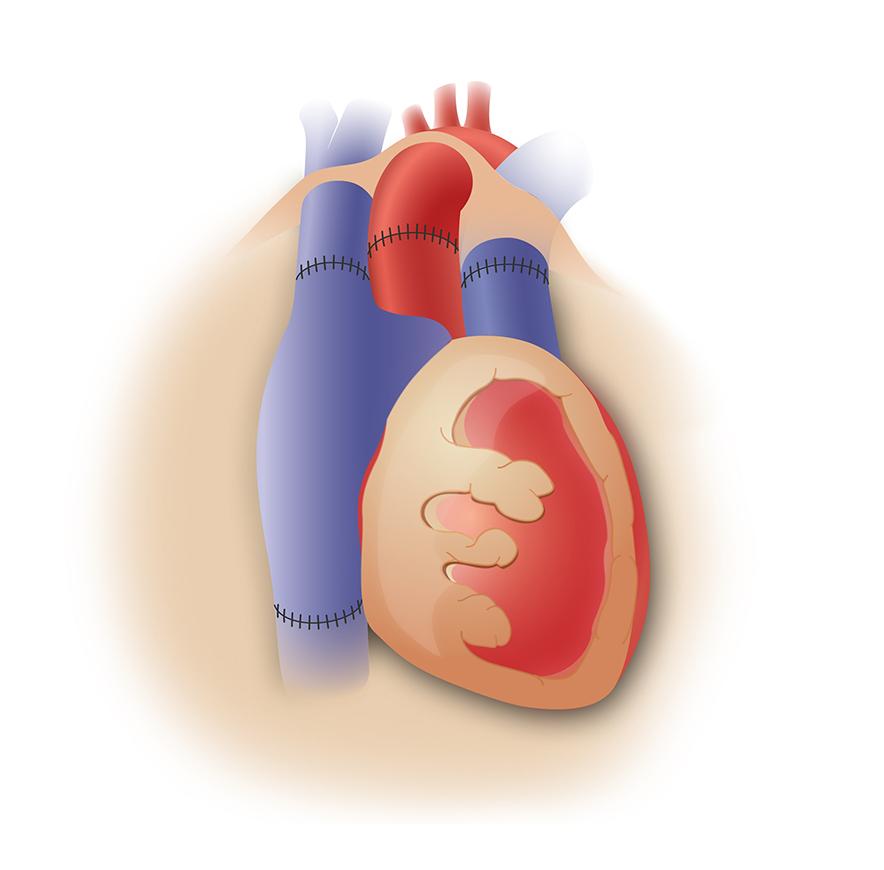 illustration opération transplantation cardiaque