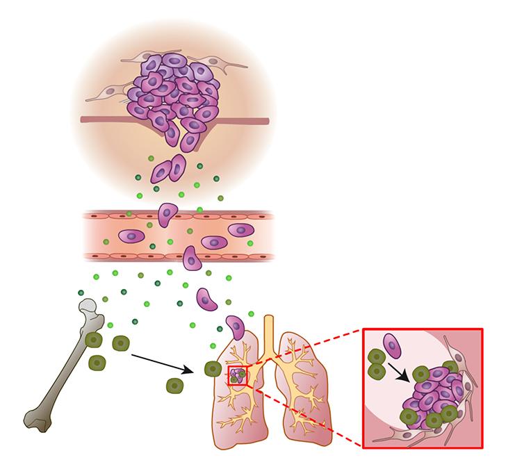 oncologie médecine illustration didactique