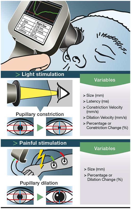 pupillométrie illustration didactique médical